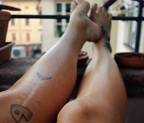10 e oltre tatuaggi che hanno coperto cicatrici